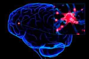 Demências Neurológicas